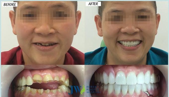 Hình ảnh trước và sau khi bọc răng sứ nguyên khối toàn hàm