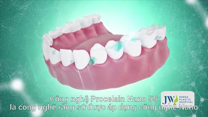Công nghệ làm răng sứ Porcelain Nano 5S.