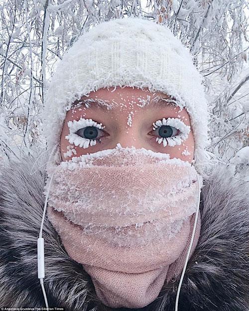 Mi mắt và tóc của người dân đóng băng ngay khi bước chân ra đường.