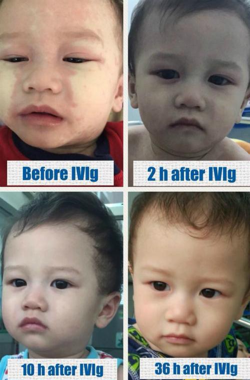 Tình trạng của bé trước và sau khi được truyền thuốc IVIg.