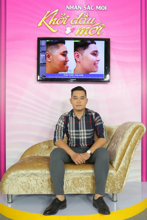 Ca sĩ Don Nguyễn bất ngờ vì vẻ đẹp trai của anh chàng từng khổ sở vì móm - 5