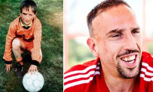 Bi kịch sau biệt danh 'Gã mặt sẹo' của Ribery