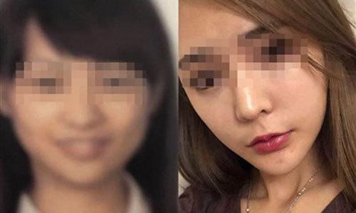 Lỡ chuyến bay vì khuôn mặt khác lạ sau phẫu thuật thẩm mỹ