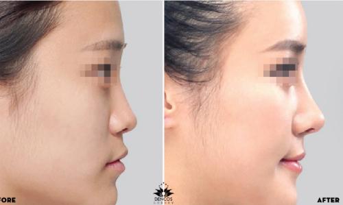 Tạo sóng mũi S-line sắc nét không phẫu thuật
