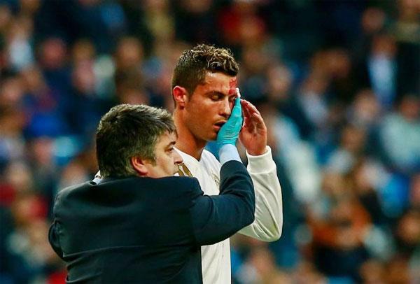 Siêu sao Real bị chấn thương trong trận gặp Deportivo sau khi lập cú đúp. Ảnh: Soccer.