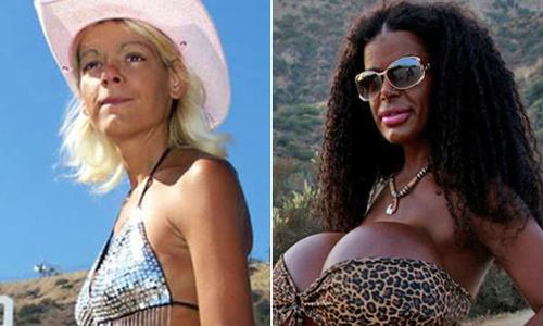 Mẫu da trắng, ngực 'bự nhất châu Âu' tiêm thuốc nhuộm để thành da đen