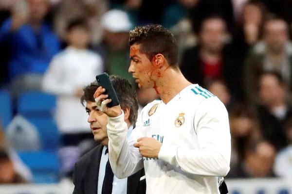HLV Zidane tiết lộ lý do C. Ronaldo mượn điện thoại soi vết thương
