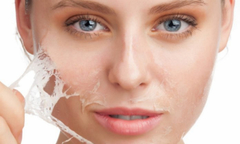 Mịn da, mờ sẹo nhờ liệu pháp thay da sinh học