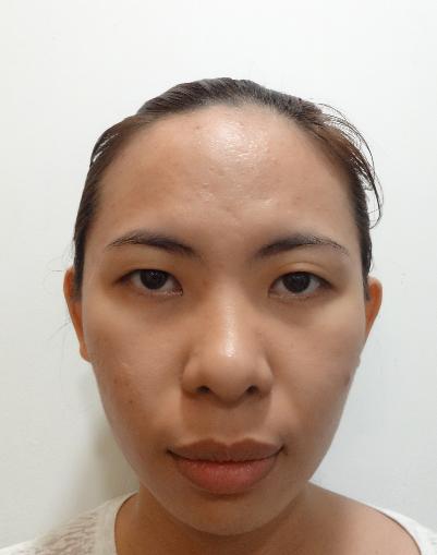 Đôi mắt của Ngọc Tuyền khi chưa thẩm mỹ