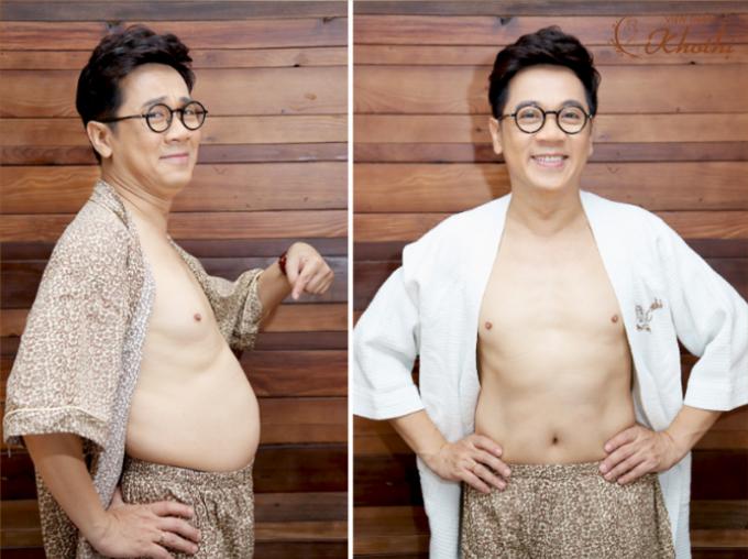 NSƯT Thành Lộc trải nghiệm công nghệ giảm béo D-Otesalycool S tại Khơ Thị.