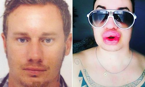 Chàng bồi bàn hóa dị nhân sau khi tiêm botox, bơm môi