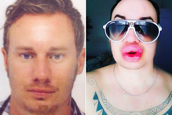 Cyril trước và sau khi liên tục bơm môi. Ảnh:mediadrumworld.com