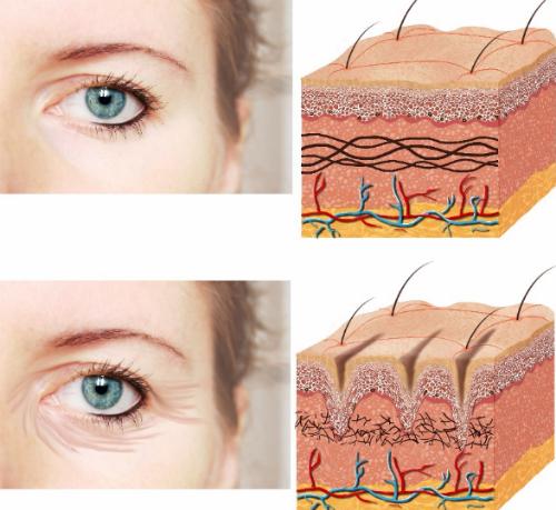 Xóa nhăn với botox, filler:Botox là dạng kết hợp giữa botulinum toxin A với albumin - loại protein tổng hợp - để tiêm vào dưới da, giúp thư giãn cơ, từ đó xóa nhăn đuôi mắt, giữa chân mày trong thời gian 6-9 tháng.Filler làm đầy và trẻ hóa da là hợp chất được cấu tạo từ Axit Hyaluronic, có thể làm đầy vùng rãnh mũi, má, trẻ hóa da... Sau khi tiêm, chất gel này tạo thành một khối mô dày dưới nếp nhăn, giúp da căng hơn, loại bỏ nếp nhăn. Ngoài ra, filler cũng được sử dụng để làm căng mọng môi và tạo cằm V-line.