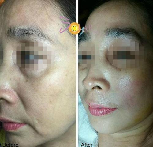 Trường hợp da mặt được cải thiệnsau một lần trị liệu tại Solar Spa.
