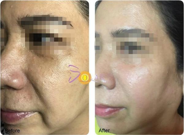 Hiệu quả do công nghệ Ultherapy đem lại sau một lần trị liệu.