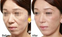 Căng da mặt, xóa nhăn không phẫu thuật với giải pháp từ Mỹ