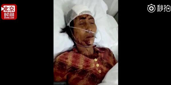 Người phụ nữ đánh lao công chảy máu đầu be bét vì giầy bị bẩn - 2