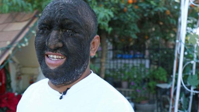 Gương mặt phủ kín lông chỉ trừ đôi môi của anh Larry.
