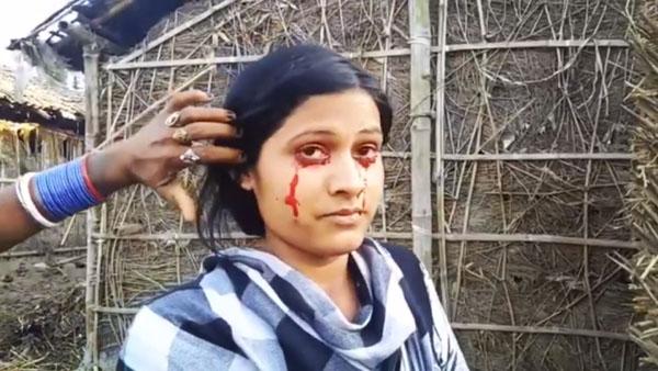 Mồ hôi đổ ra quanh mắt Geeta cũng có màu đỏ của máu. Ảnh: India Photo Agency