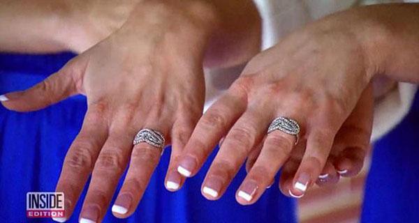 Hai cô gái hạnh phúc khoe hai chiếc nhẫn cầu hôn giống hệt. Ảnh: Inside Edition