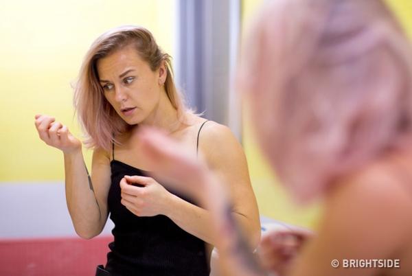 Rụng tóc có thể do nhiều nguyên nhân, một trong số đó là tình trạng mất cân bằng nội tiết tố.