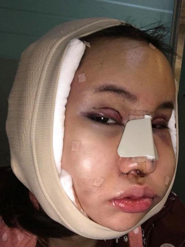 Piyapeauty đã thực hiện phẫu thuật cắt mí mắt, nâng mũi, thu gọn xương hàm và tạo dáng cằm V-line.