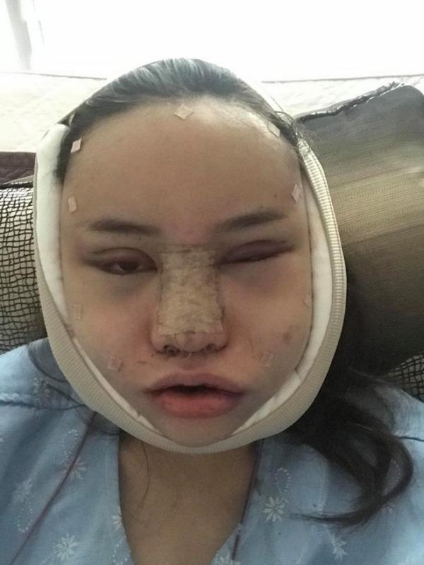 Sau khi hoàn tất phẫu thuật, khuôn mặt của Piyapeauty sưng nề nghiêm trọng.