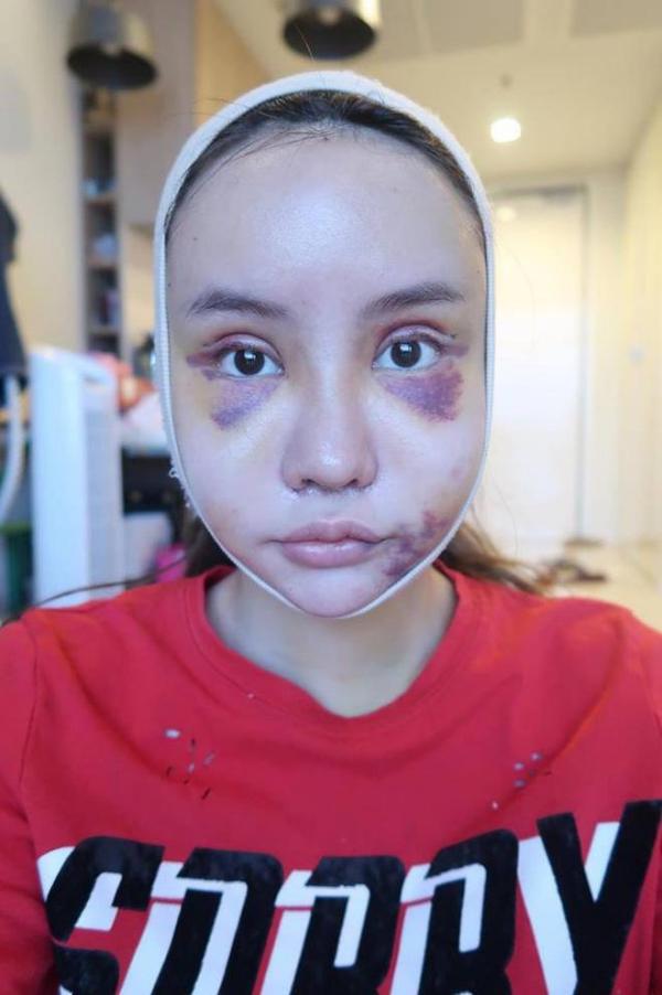Piyapeauty chia sẻ cô cảm thấy thực sự tuyệt vọng vì sau cả tháng khuôn mặt vẫn còn sưng và bầm tím.