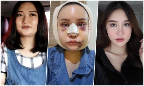 Beauty blogger Thái Lan trải qua 4 tháng 'sống trong địa ngục' để thay đổi nhan sắc