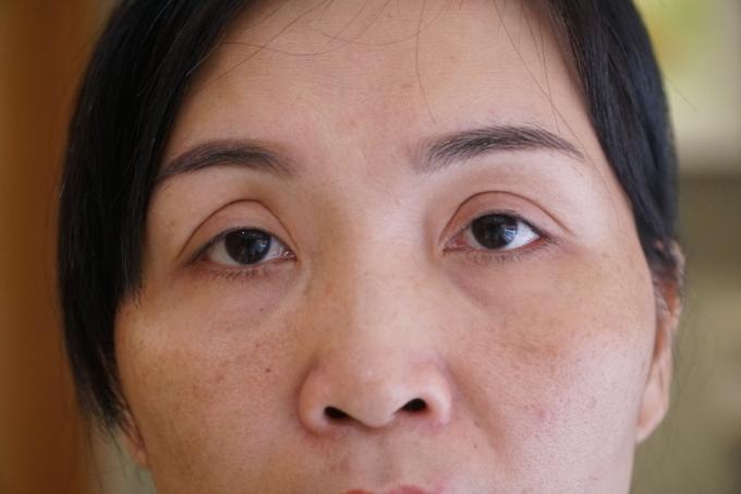 Đôi mắt buồn sau hai lần thẩm mỹ là nỗi ám ảnh chị Loan suốt 10 năm qua.