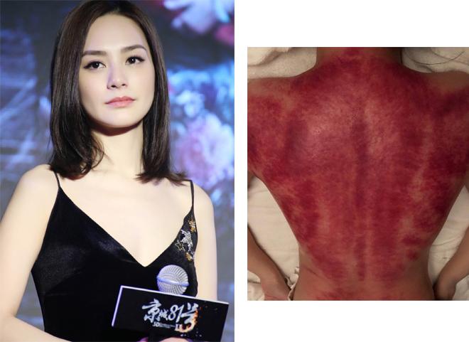 Chung Hân Đồng để lộ tấm lưng bầm máu