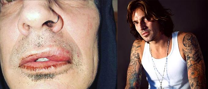 Brandon Lee đăng ảnh bị con trai đánh dập môi.