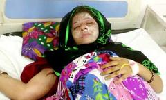 Bị chồng tạt axit vì sinh hai con gái