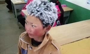 'Cậu bé tóc đóng đá' phải nghỉ ở trường mới vì quá gây chú ý