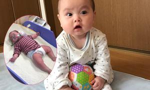 Bé 6 tháng tuổi khó thở, tím tái sau khi ăn trứng