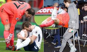 Harry Kane chống nạng rời sân, nước Anh 'nín thở'