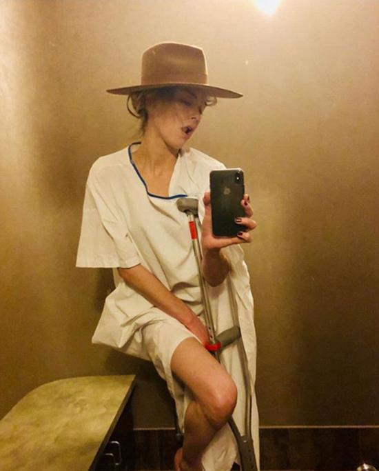 Amber Heard dường như bị gẫy xương cổ chân.