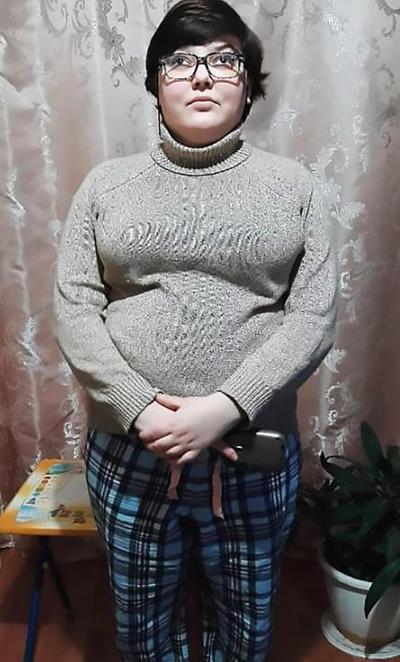 Ngoại bình béo và xấu xí hiện tại của Maria sau vụ tai nạn năm 2016. Ảnh: The Siberian Times