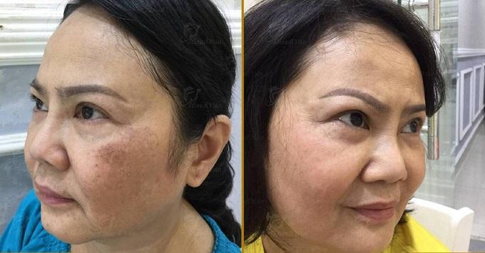 Hình ảnh trước và sau trị liệu của cô Vânnhận nhiều phản hồi tích cực từ phái đẹp.