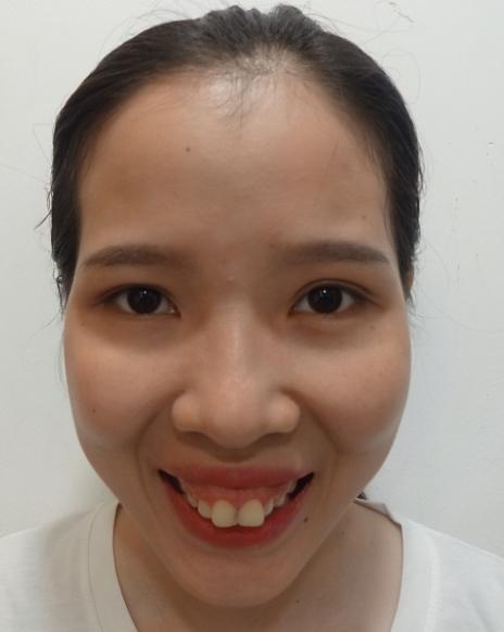 Thảo My bị hô quá mức, răng nhô ra phía ngoài quá nhiều, gương mặt vì thế mà kém duyên