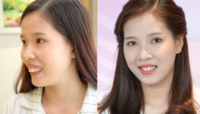 Hình ảnh trước và sau khi thực hiện phẫu thuật hàm hô của Thảo My