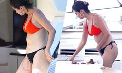 Selena Gomez mặc bikini để lộ vết sẹo từ lần phẫu thuật ghép thận