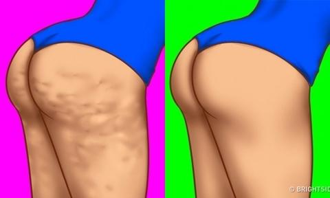 7 điều cần làm để da hết sần sùi tự tin diện bikini trong mùa hè