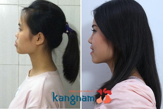 Nha khoa Paris hợp tác với bệnh viện thẩm mỹ Kangnam trong phẫu thuật chỉnh hô móm - 2