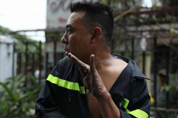Bàn tay anh lính cứu hỏa trôi tuột da vì bỏng.