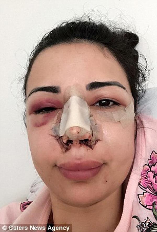 Jennifer thực hiện ca phẫu thuật đầu tiên vào năm 17 tuổi. Cô chỉnh sửa mũi, má, cằm, cắt bỏ 4 chiếc xương sườn để có vòng eo nhỏ hơn và tiêm chất làm đầy vào mông.