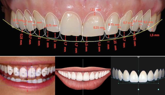 Phân tích dựng hình thẩm mỹ răng sứ tạiNha khoa Peace Dentistry.