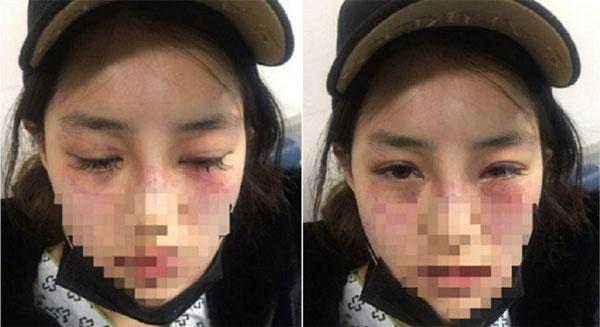 Gương mặt bị đánh đập đến bầm tím, sưng húp của B.