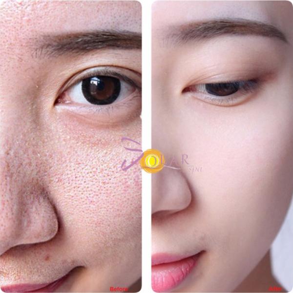 Thu hẹp lỗ chân lông trên mặt sau một liệu trình