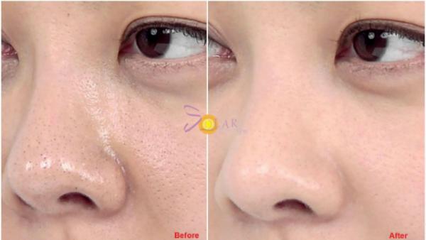 Thu hẹp lỗ chân lông trên mặt sau một liệu trình - 1